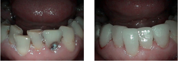 Dental before & after photos - Crown Dentistry in Sacramento